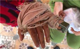 """Vụ giáo viên bị """"tố"""" đánh gãy ngón tay học sinh: Cơ quan chức năng vào cuộc"""