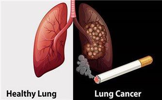 SOS: Hơn 26.000 người Việt mắc ung thư phổi, 90% đều hút thuốc lá