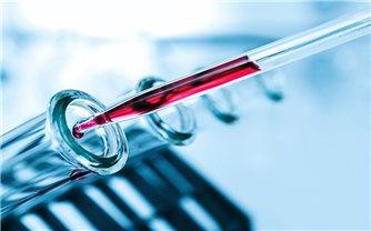Anh thử phương pháp xét nghiệm máu giúp phát hiện sớm 50 loại ung thư