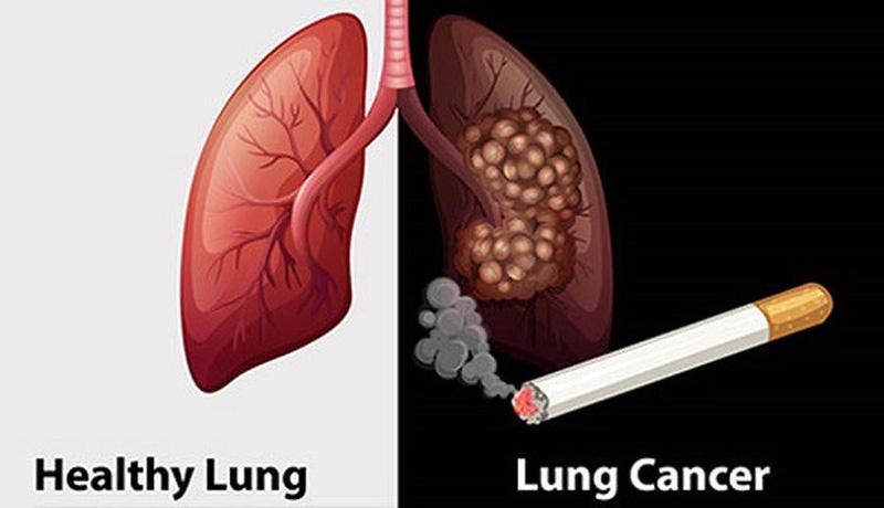 Hút thuốc lá là nguyên nhân chính gây ung thư phổi. 90% bệnh nhân mắc ung thư phổi đều hút thuốc lá. Trong khói thuốc lá có khoảng 4000 hoạt chất gây độc hại cho cơ thể, đặc biệt chất 3-4 benzopyzen là chất gây ung thư rất rõ trong thực nghiệm.
