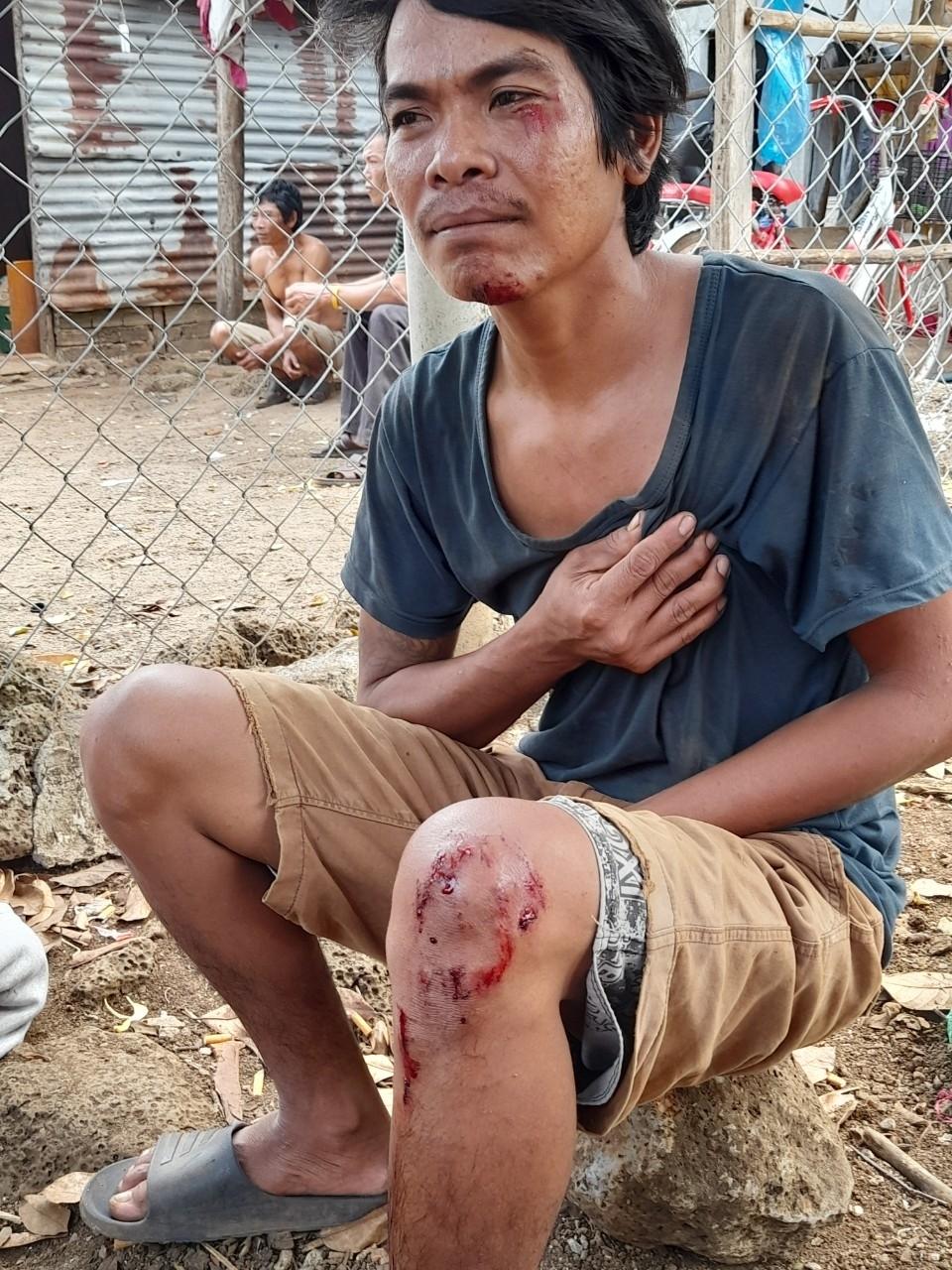 Một người dân trong ấp Thuận An bị nhóm của đối tượng Dũng hành hung, gây thương tích