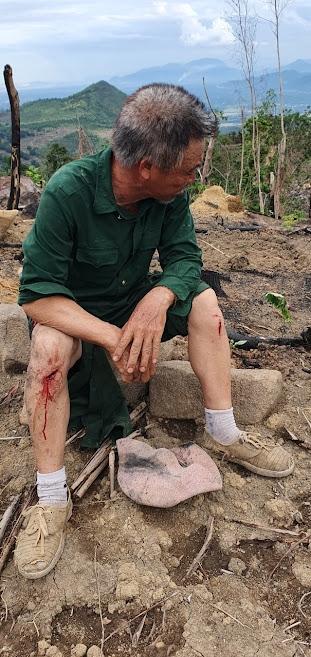 Anh Biêm bị các đối tượng đánh và bị đa chấn thương trên cơ thể